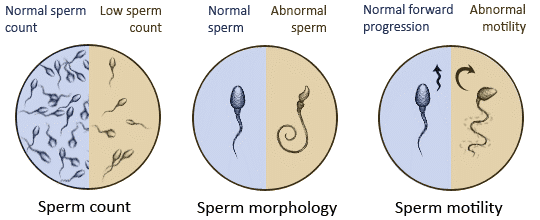 IMSI-Strict-software-aids-in-the-IMSI-process-by-measuring-the-size-and-shape-of-the-sperm-head